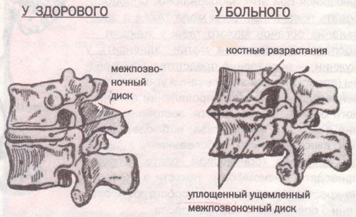 Упражнения для остеохондроза поясничного отдела бубновского