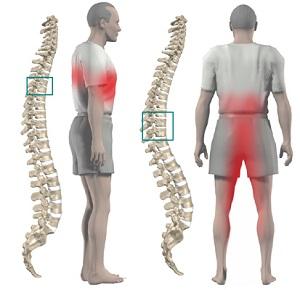 Как делать гимнастику при остеохондрозе шейного отдела