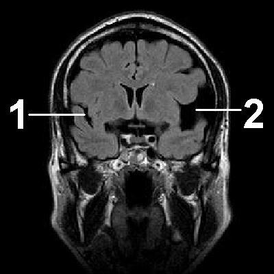 Церебральная киста головного мозга последствия
