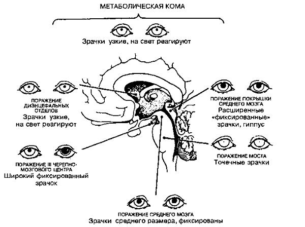 Парез птоз анизокория Поиск причины