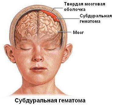 Хроническая субдуральная гематома мкб 10