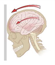 Как выглядит сотрясение головного мозга?