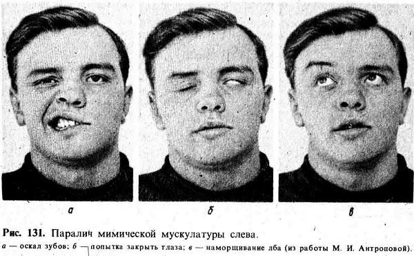 Защемление лицевого нерва у ребенка