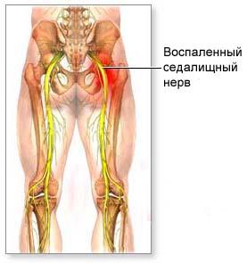 Невропатия седалищного нерва мкб 10