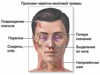 Ушиб головного мозга причины у детей грудничка код МКБ-10 гематома