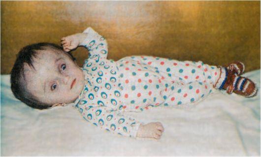 Синдромы мебиуса и брауна у детей. Синдром парино.