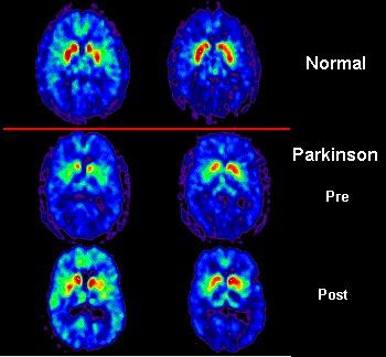 Результат позитронно-эмиссионной томографии при болезни Паркинсона