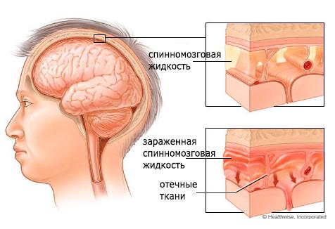 Серозный менингит у детей: лечение и последствия