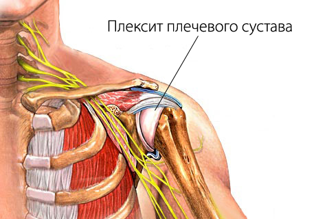 Брахиоплексопатия мкб 10